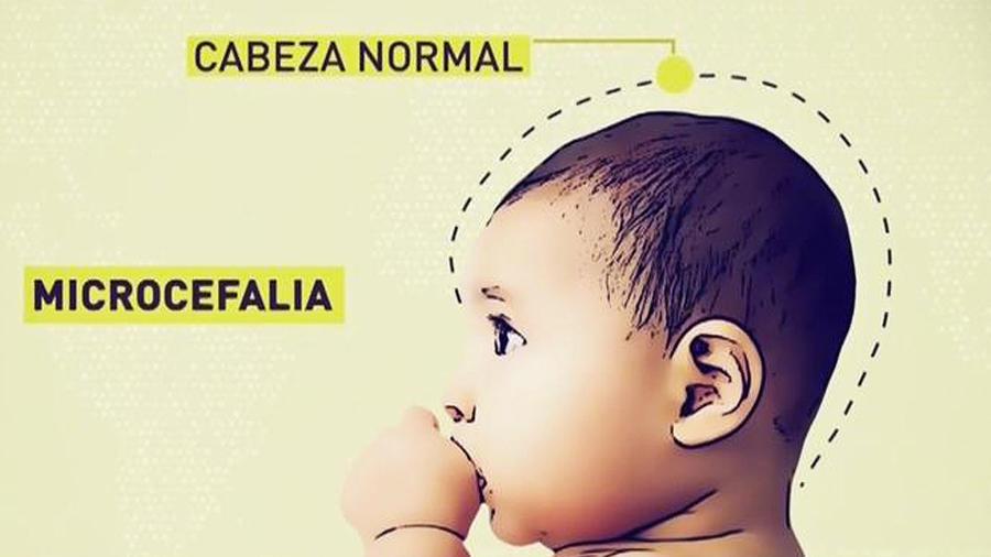 bebe con microcefalia por zika