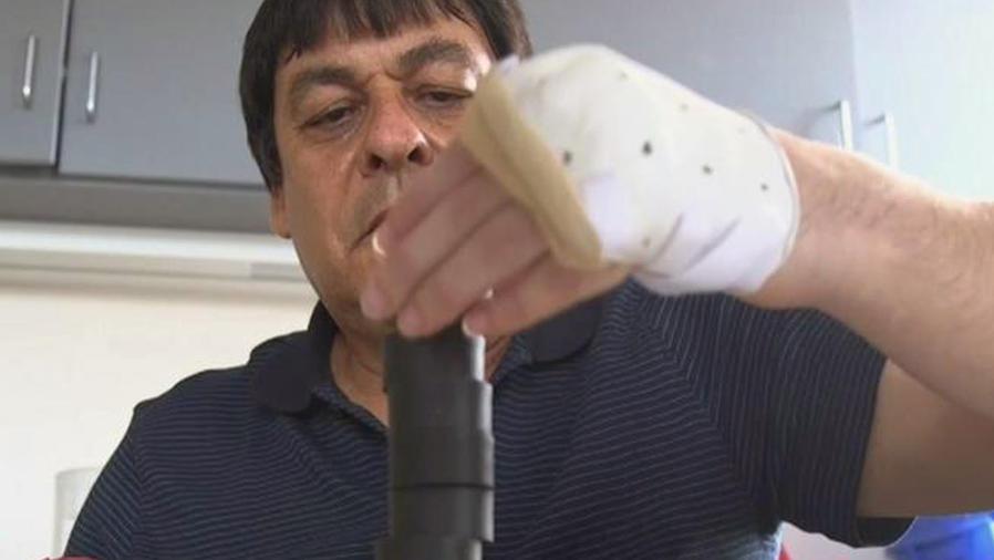 Hombre asimila con éxito trasplante de mano