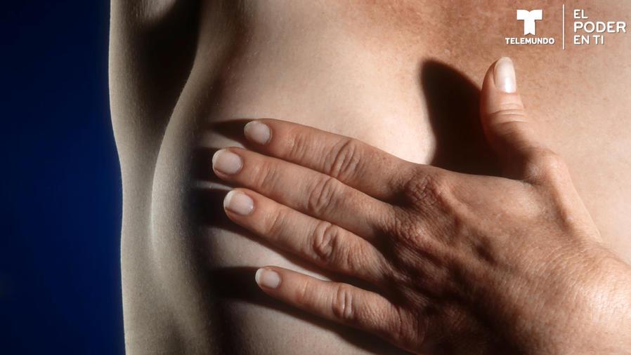 ¿Qué hacer ante una irregularidad en tus senos?