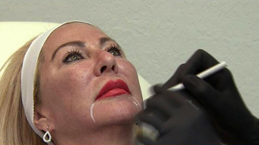 Liquid facelift, técnica para rejuvenecer sin cirugías