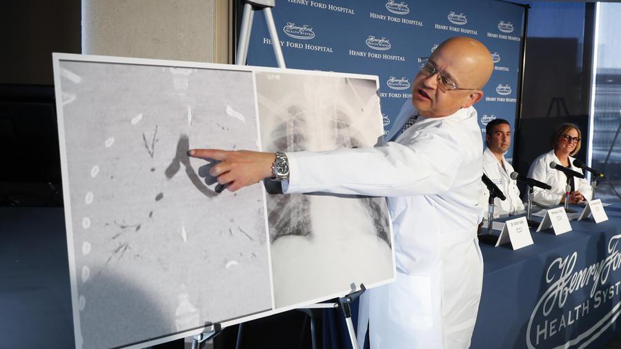 Realizan primer trasplante de pulmón vinculado al uso de cigarrillos electrónicos