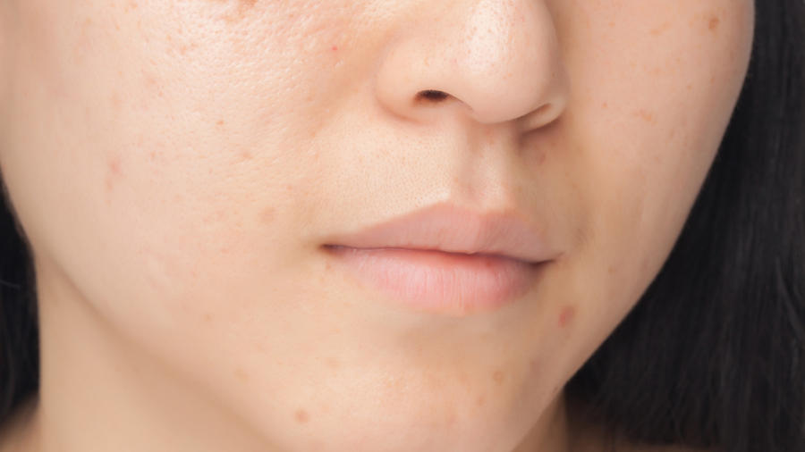 Manchas en el rostro