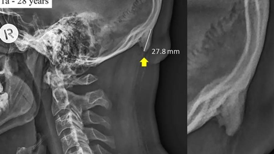 Espolón de 27,8 milímetros en la parte de atrás de la cabeza