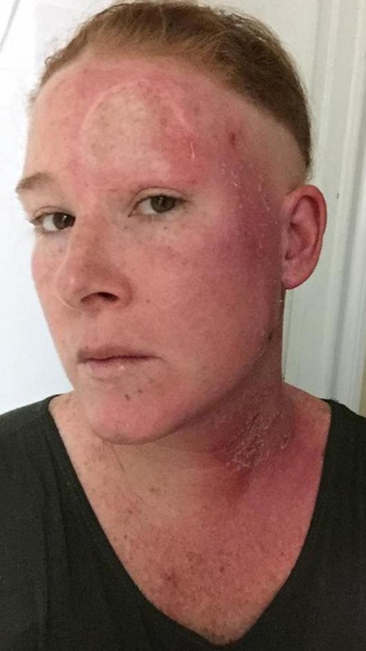 manchas rojas en la piel debajo del ojo