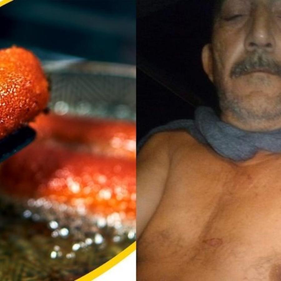 Ricardo Pimentel, de 54 años, sufrió quemaduras severas cuando trató de freír croquetas compradas en un establecimiento del Gobierno en Cuba.