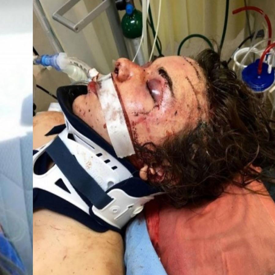 Daniella Jones en estado de coma, después de reicbir una fuerte golpiza