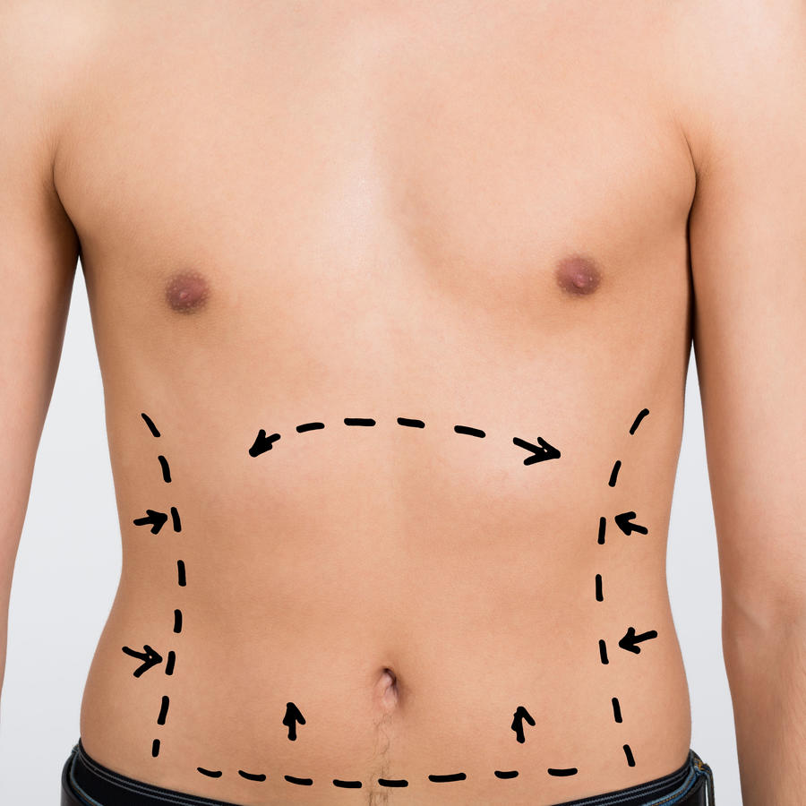 Hombre con marcas previas a cirugía estética en el abdomen