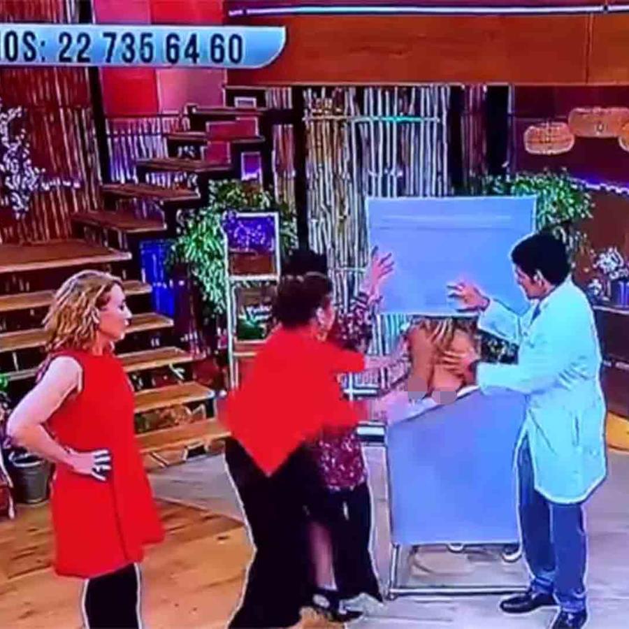 Modelo topless se desmaya en show chileno