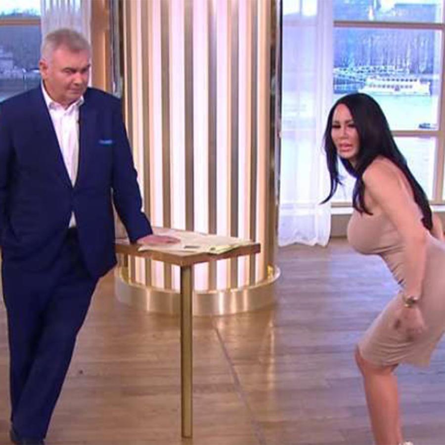 Modelo se opera para tener el trasero de Kim Kardashian