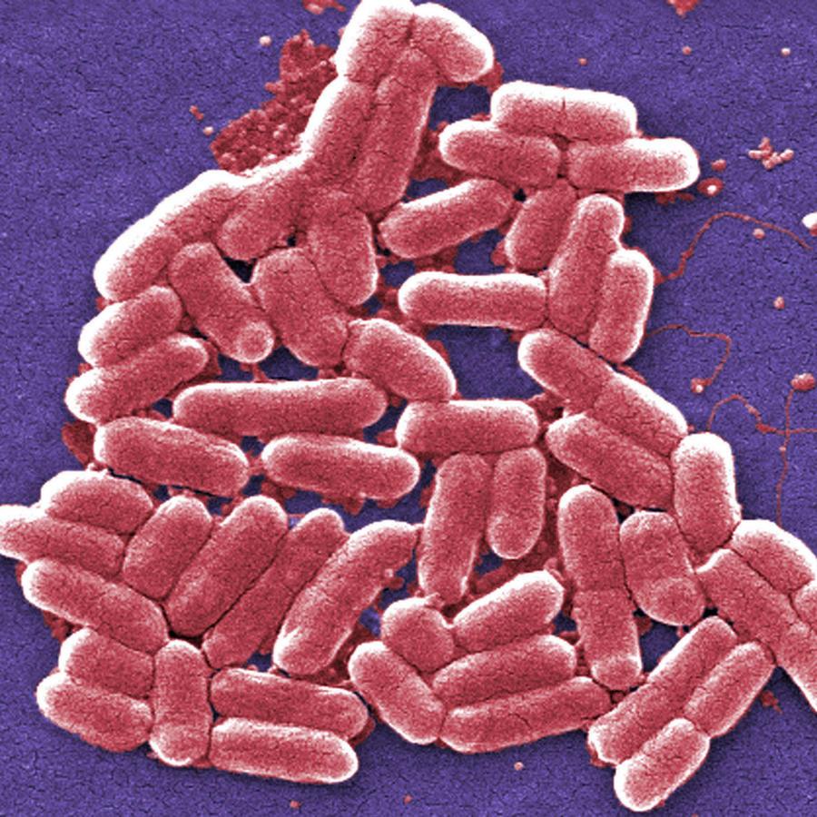 Imagen del CDC de una bacteria E. coli resistente a antibióticos.