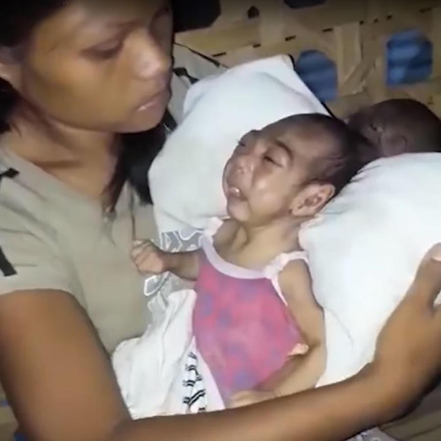 Bebé con encefalocele