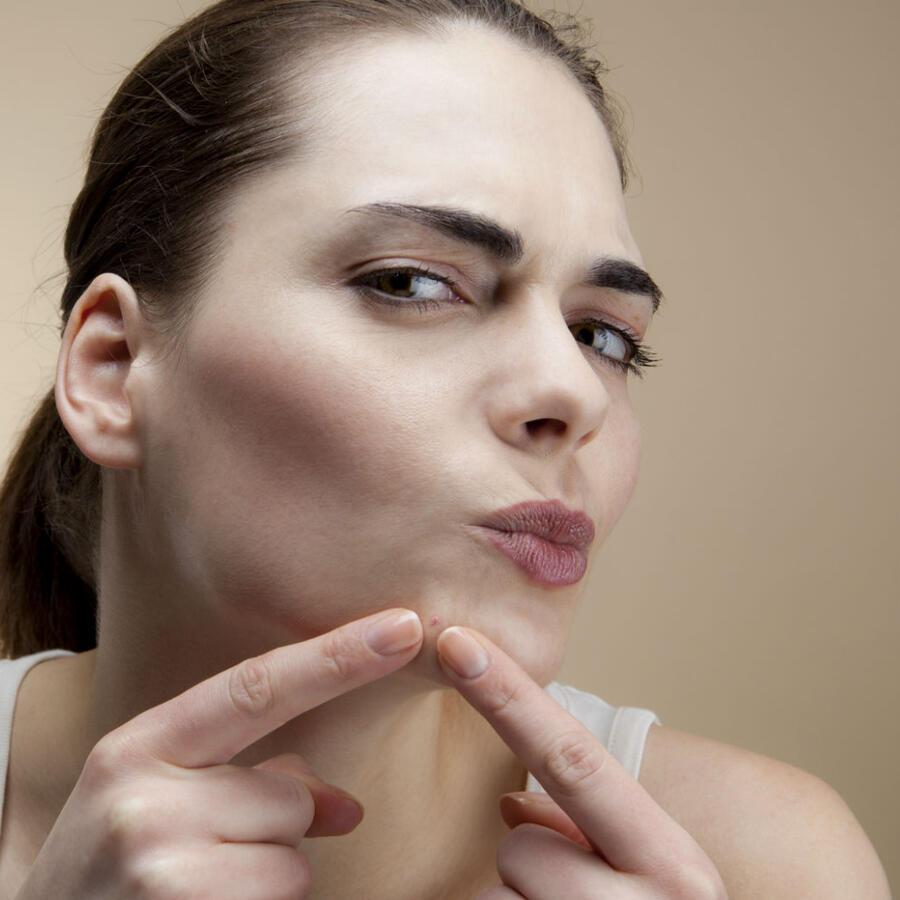 Tratamientos contra el acné