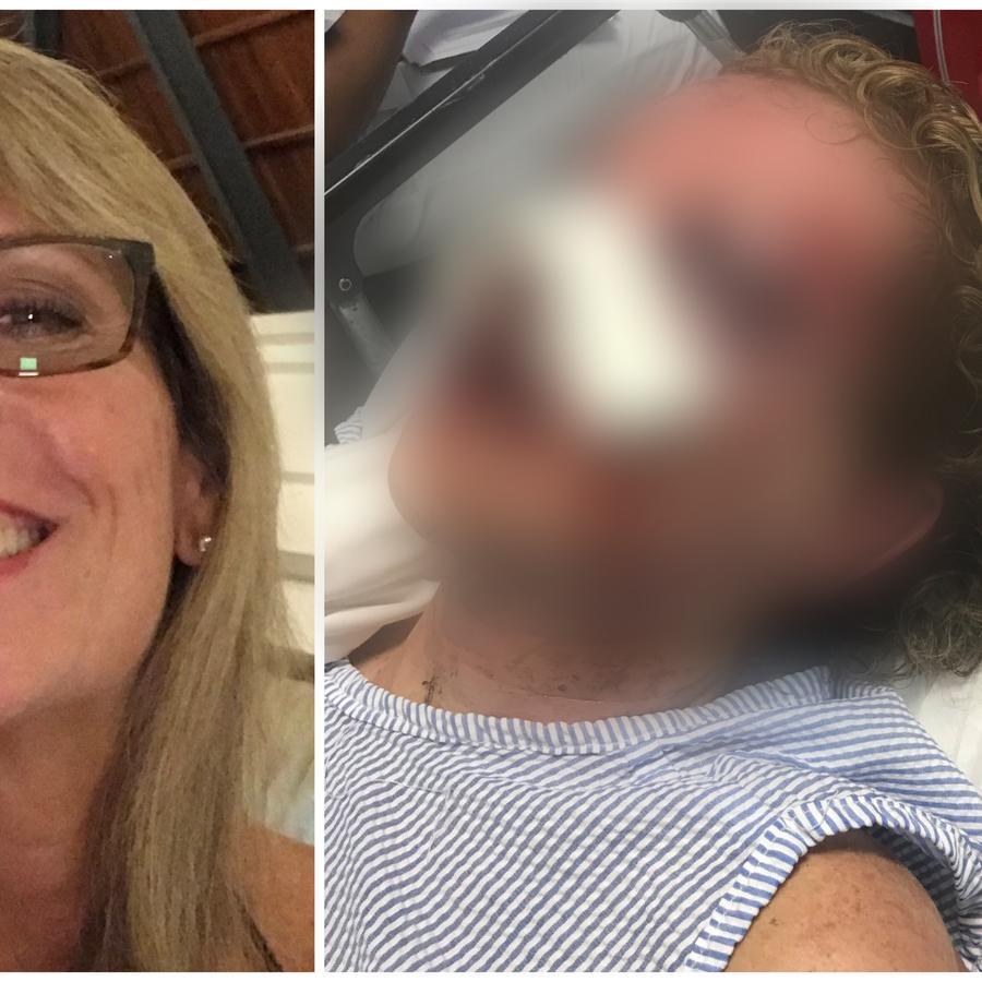 Tammy Lawrence-Daley fue golpeada en República Dominicana