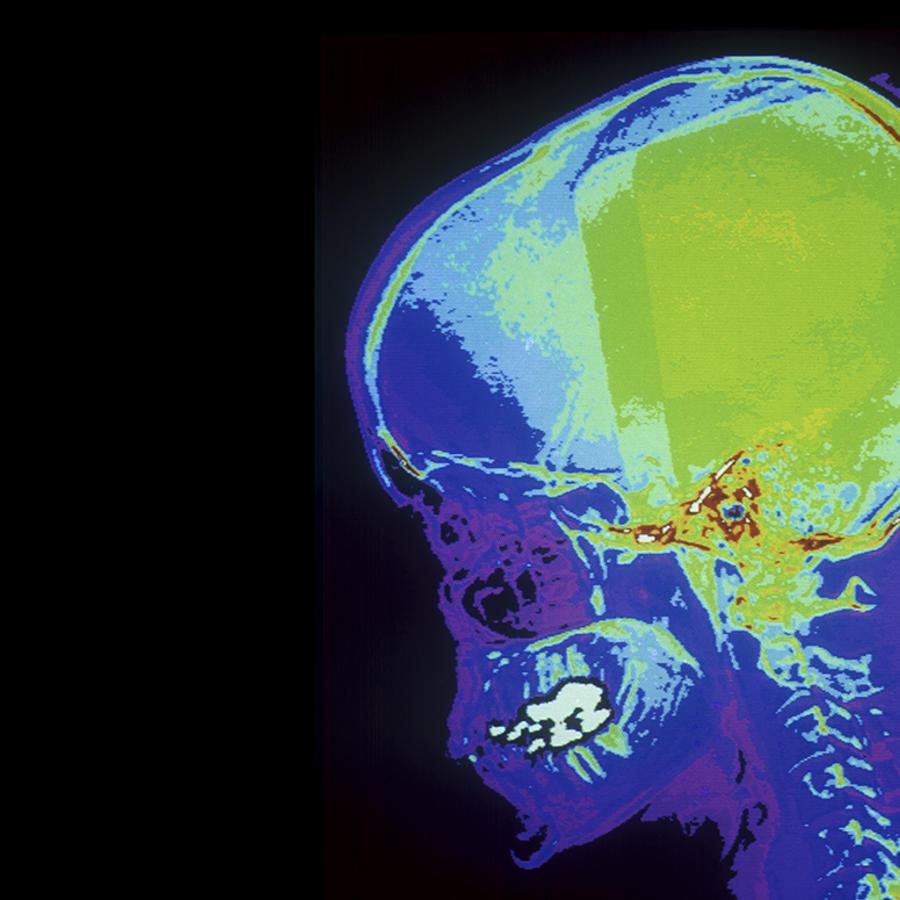 Radiografía lateral de una persona.