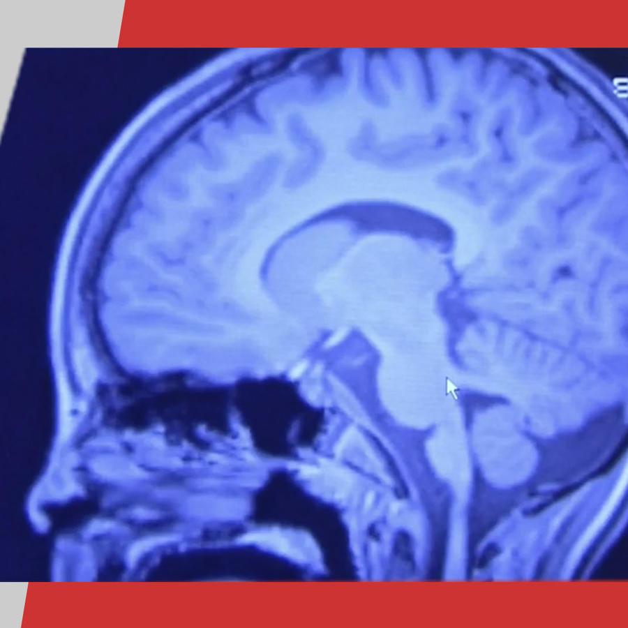 Epilepsias causan carcajadas