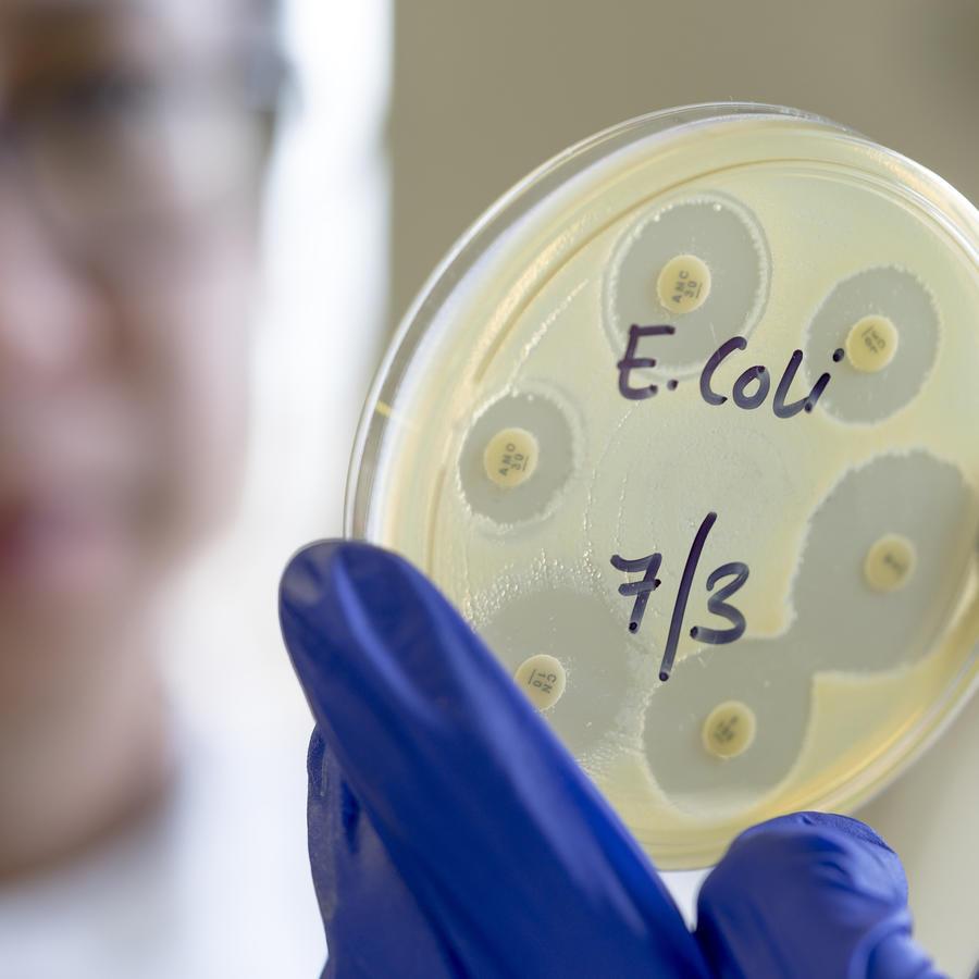 La foto muestra una prueba de sensibilidad de bacterias usando la técnica de difusión de disco.