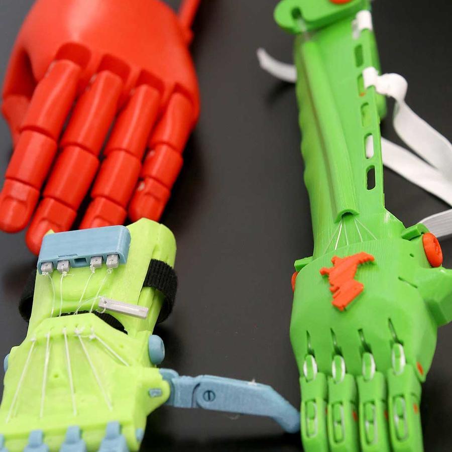 Prótesis de brazo