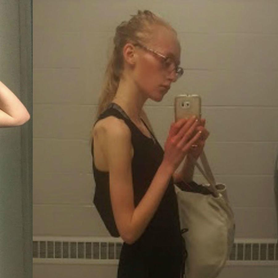 La anorexia de Emily Green
