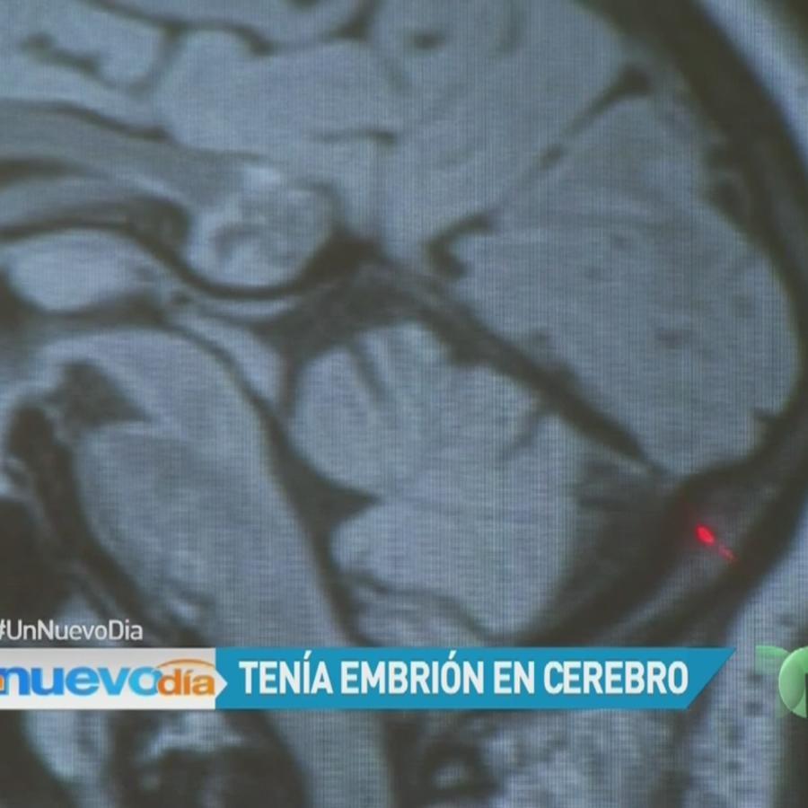 Embrión en cerebro