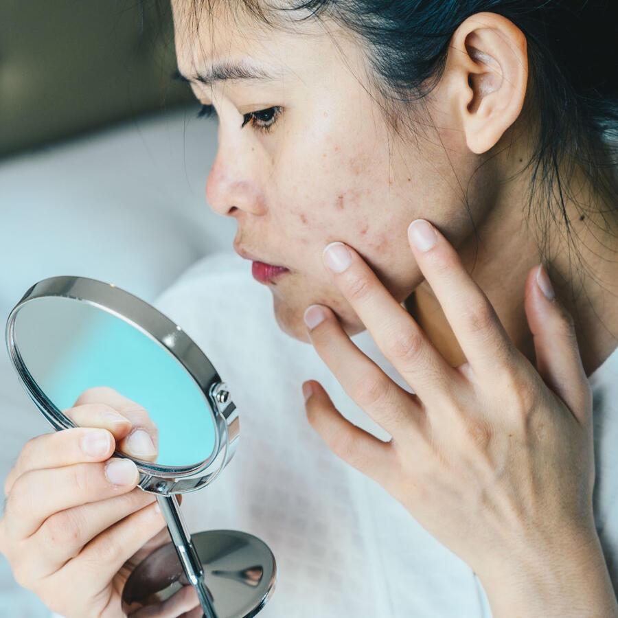 Mujer con acné en el rostro