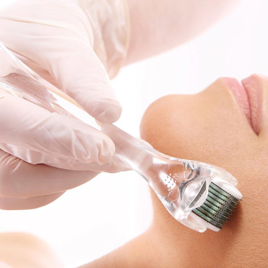 Mujer acostada realizándose un tratamiento de estética en el rostro