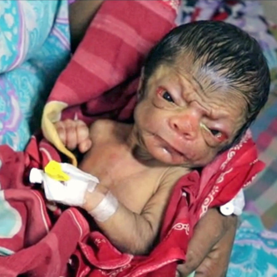 El extraño caso del bebé que parece una persona de 80 años (FOTOS)