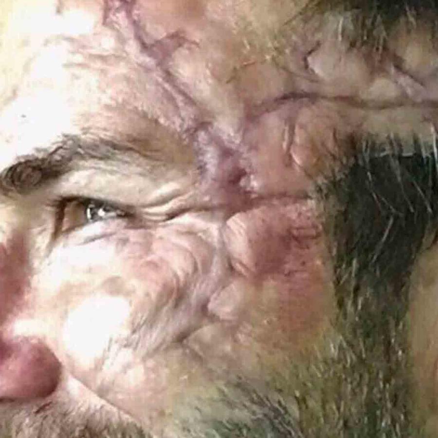 Cicatriz de David Beckham para filmación de King Arthur Movie