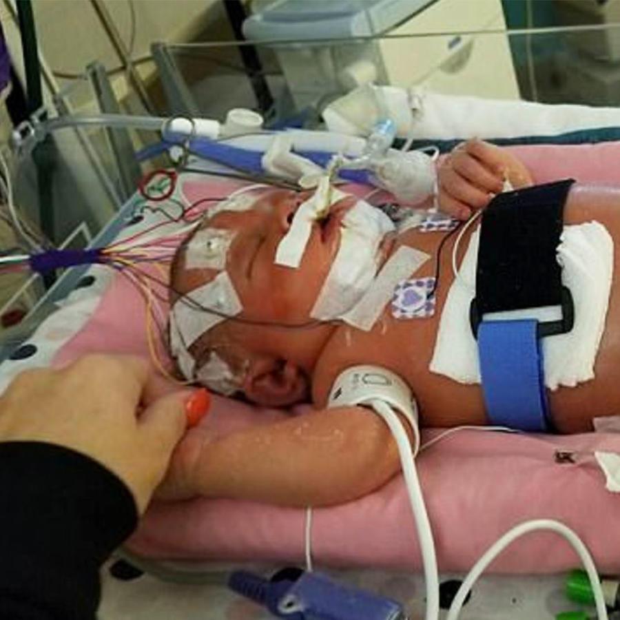 Mariana en la unidad de cuidado intensivo pediátrico