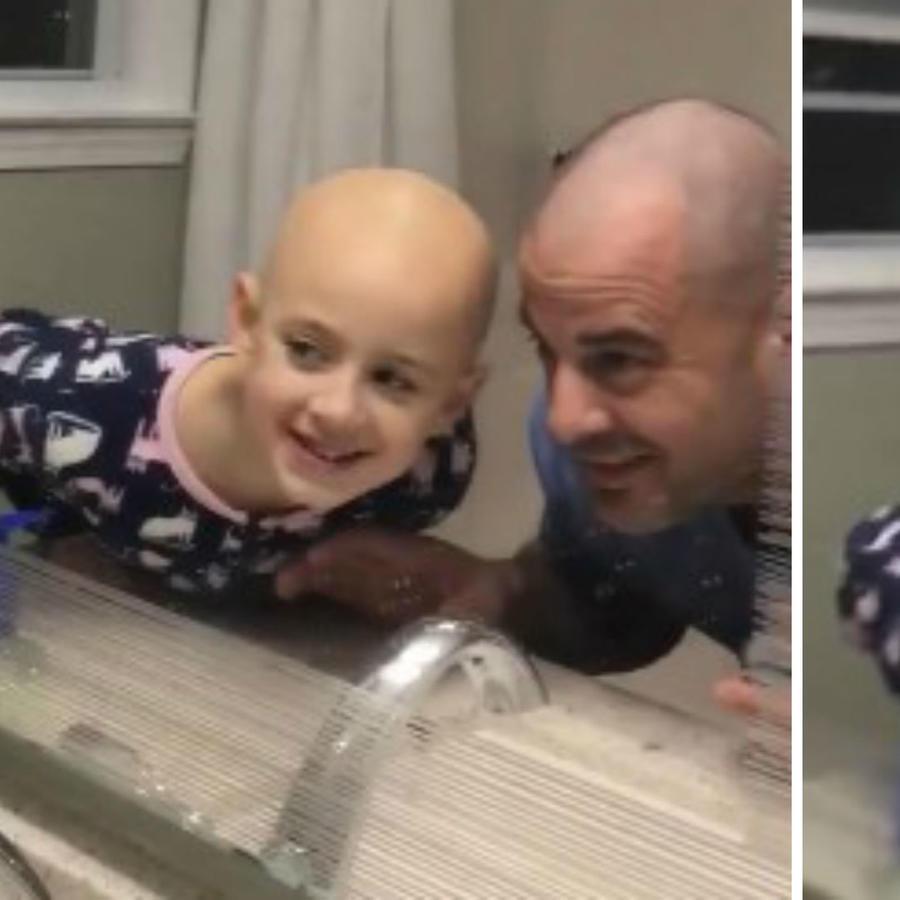 Papá besando a su hija con alopecia