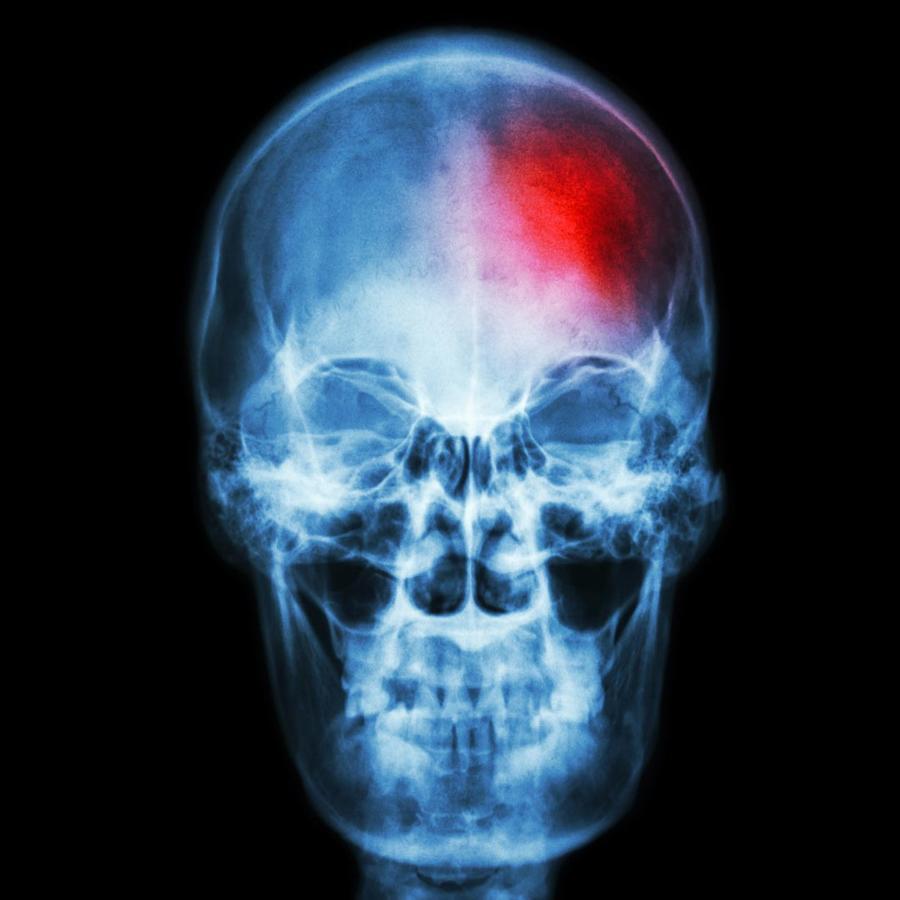Radiografía de cabeza