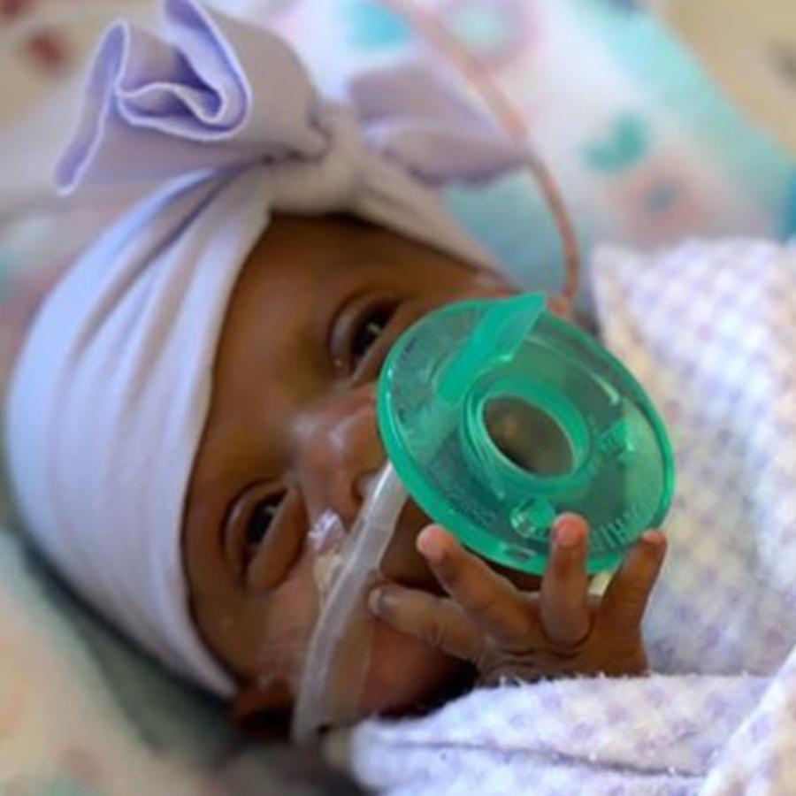 Saybie nació a las 23 semanas y tres días de gestación.