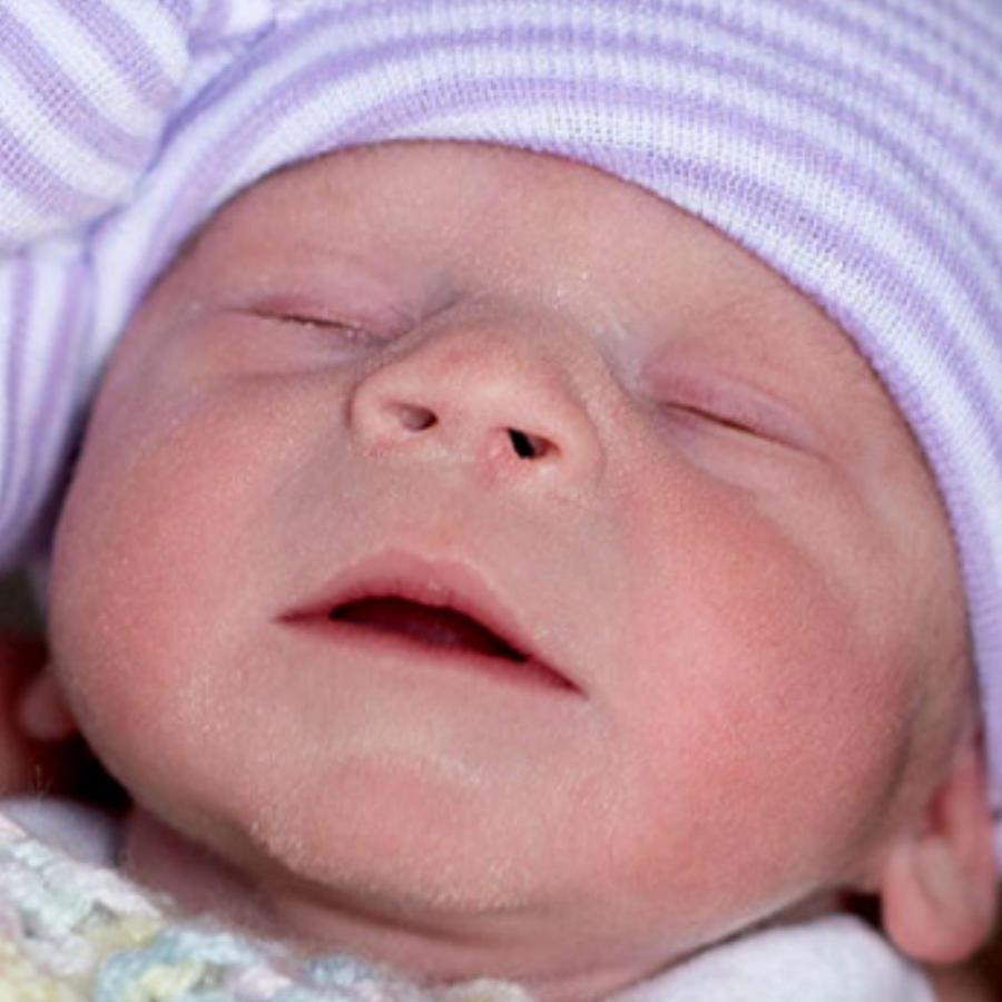 Primera bebé nacida de un útero trasplantado