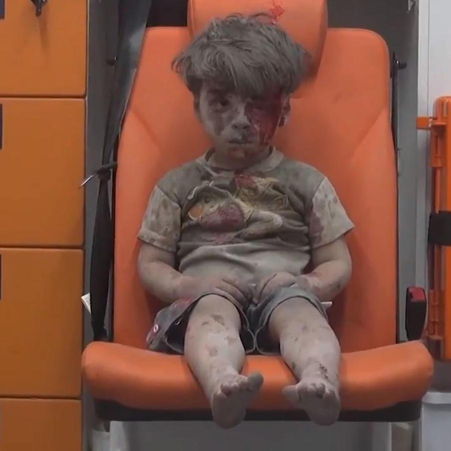 La imagen de un niño herido llama la atención sobre el drama de Alepo