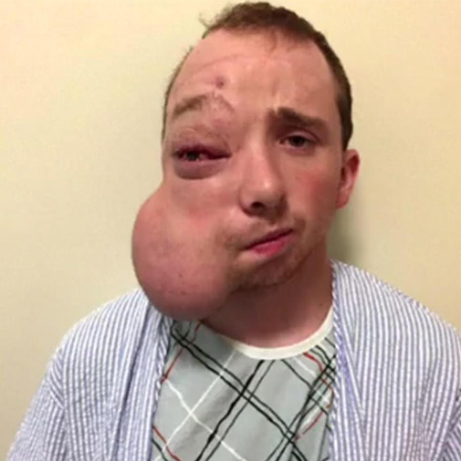 Remueven tumor gigante de la cara de un joven