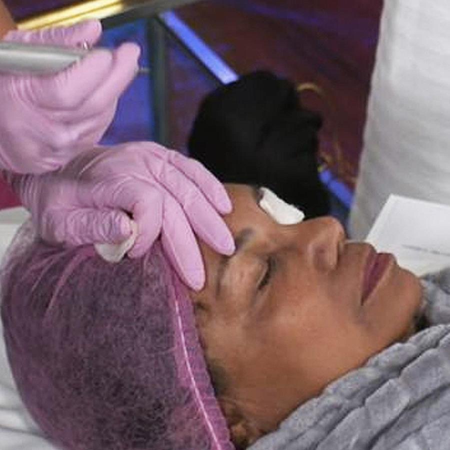 tratamento fibroblast