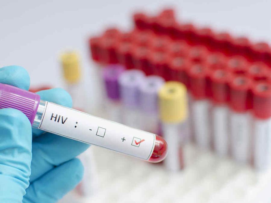 Este virus infecta las células y se integra en su material genético para pasar desapercibido