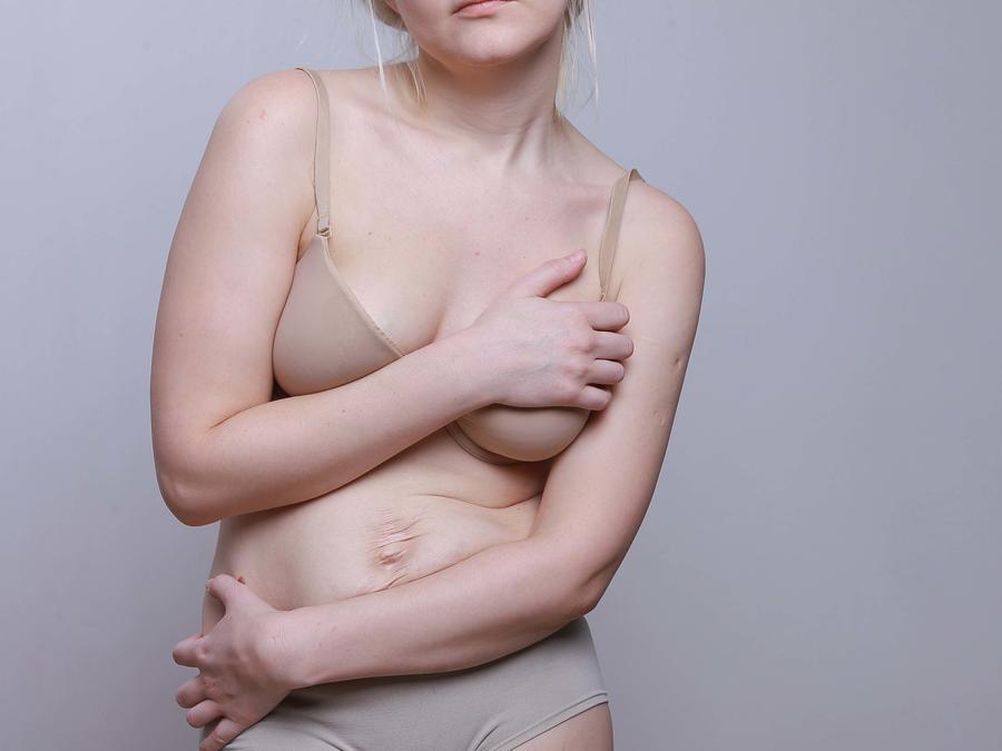 Cuerpo después del parto