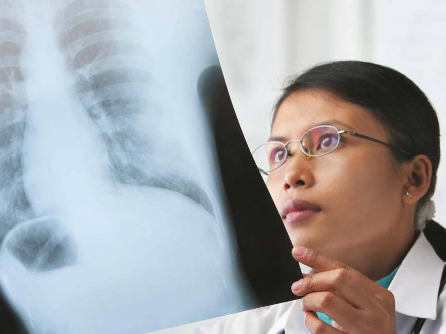 Médica revisa radiografía de pulmones