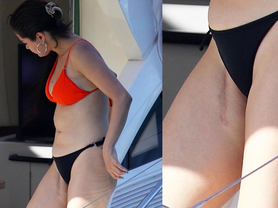 Selena Gomez mostrando su cicatriz