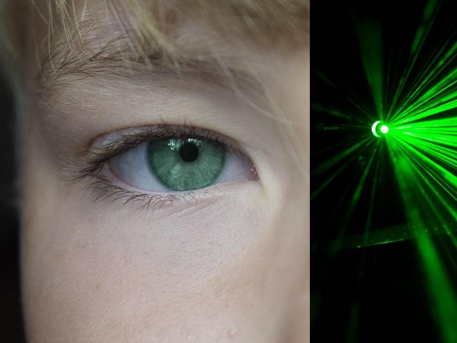 laser ojo archie