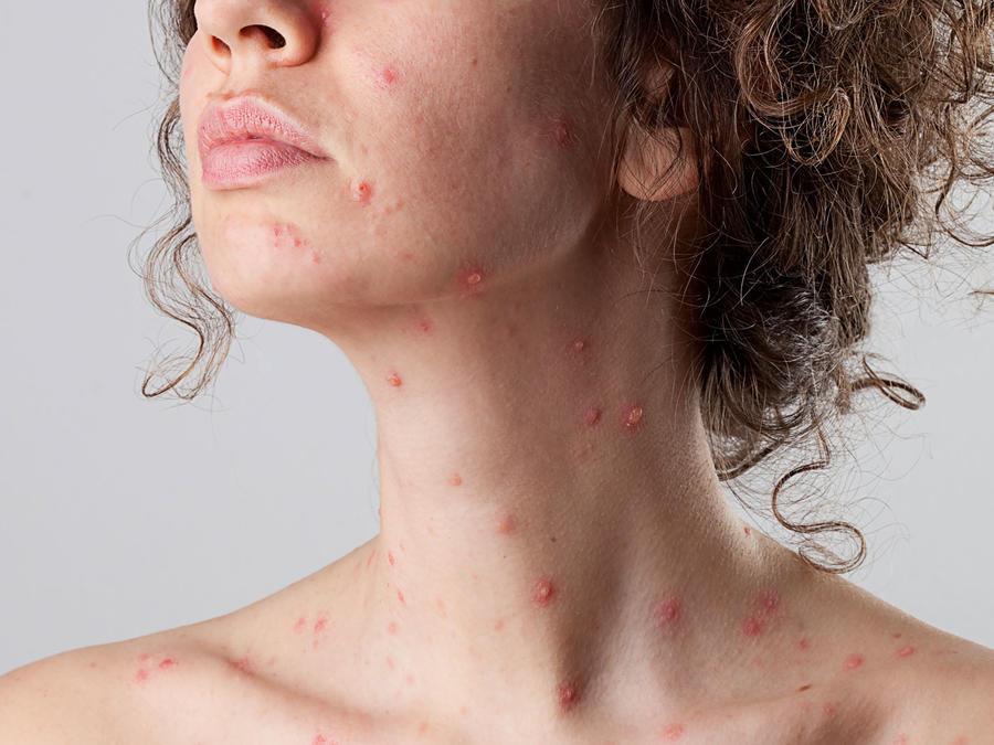 Lesiones por gonorrea