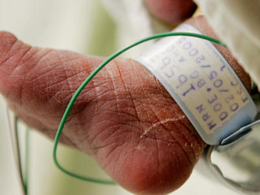Un bebé internado en un hospital de Texas en 2005