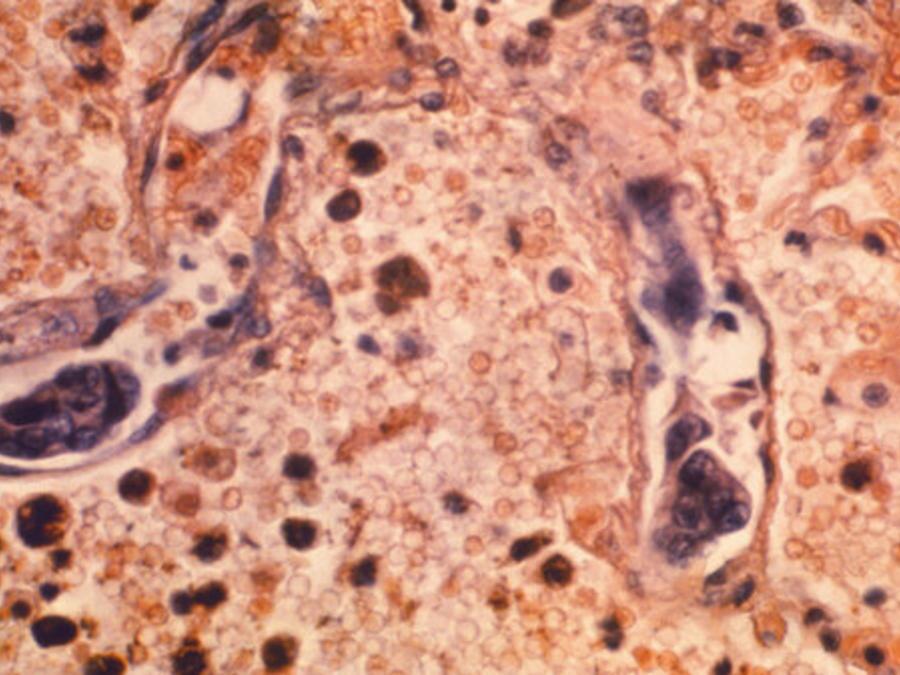233/5000 Esta foto de microscopio de 1964 puesta a disposición por los Centros para el Control y la Prevención de Enfermedades muestra una muestra de tejido pulmonar de un paciente con adenocarcinoma de pulmón. (Dr. Ellis / Emory University, Departamento