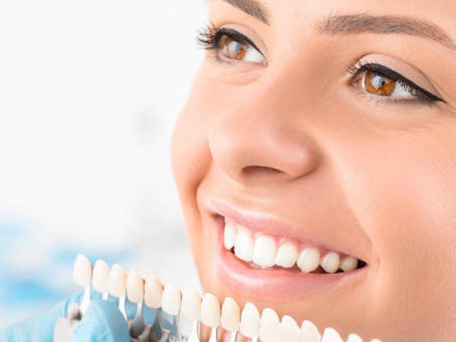 Blancorexia obsesión dientes blancos
