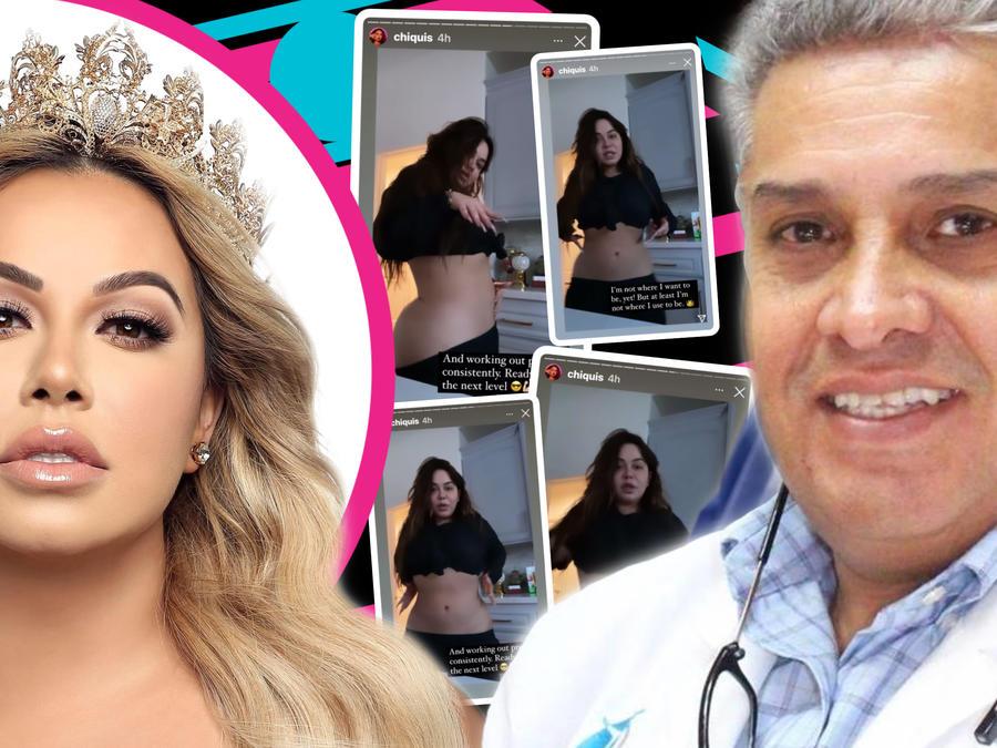 Chiquis muestra su nuevo cuerpo, pero salen fotos de ella en el quirófano