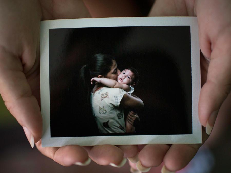 Retratos de bebés discapacitados por el Zika