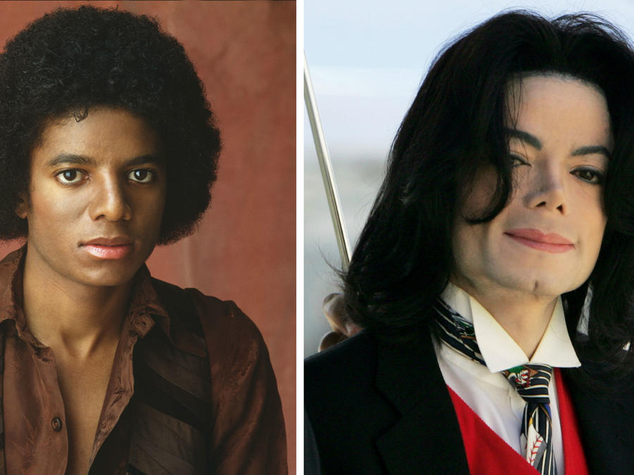 Collage antes y después de Michael Jackson