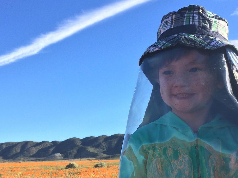 Oliver Kei, niño alérgico al sol