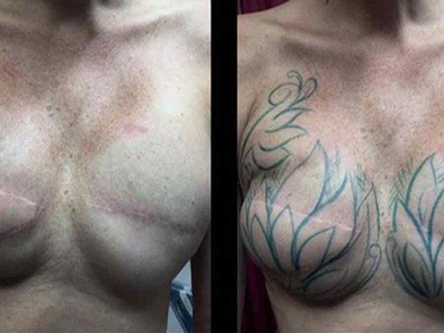 Masectomía con tatuaje
