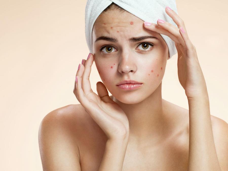 mujer con toalla en el cabello y con acné en el rostro
